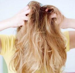 脂漏性皮膚炎で抜け毛や脱毛、頭皮の痒みも